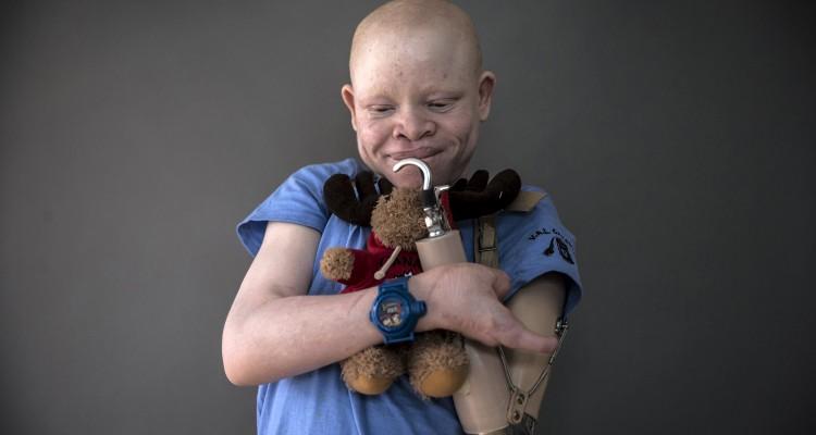 Emanuel Festo, 13, dari Tanzania berpose untuk pemotretan sambil membawa mainan yang menurutnya membuat aman pada malam hari dan membantunya tidur, di wilayah Staten Island, New York, Senin (21/9). Bagian tubuh albino bernilai tinggi dalam perdukunan dan berharga mahal. Takhayul memberikan keyakinan anak albino adalah setan yang membawa nasib buruk. Beberapa meyakini tungkai lebih kuat jika korban berteriak saat diamputasi, menurut laporan PBB pada 2013. Albino merupakan kelainan bawaan terjadi 1 dalam 20.000 kelahiran di dunia dan banyak ditemukan di sub-Sahara Afrika dan 1 dalam 1.400 kelahiran di Tanzania. PBB memperkirakan 75 albino dibunuh di Afrika timur sejak 2000 dan mengakibatkan ketakutan akan meningkatnya serangan menjelang pemilihan tahun ini, ketika para politikus mencari jimat keberuntungan dari para dukun. ANTARA FOTO/REUTERS/Carlo Allegri.